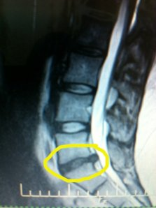 L5-S1 herniated disc